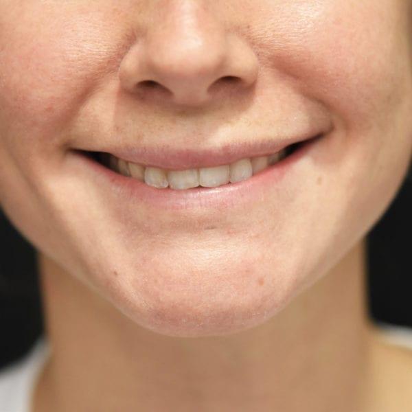 Läppar innan läppkirurgi-måsvingeplastik_35852