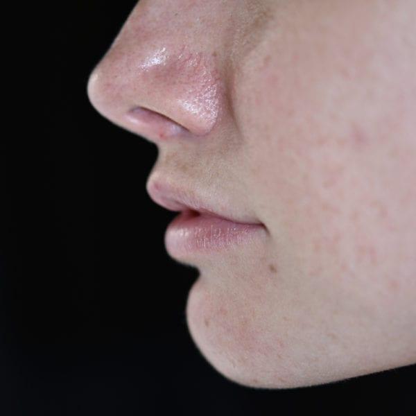 Läppar från sidan efter läppkirurgi-måsvingeplastik_35852