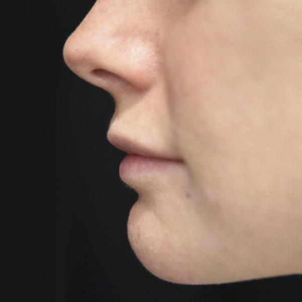 Läppar från sidan innan läppkirurgi-måsvingeplastik_35852
