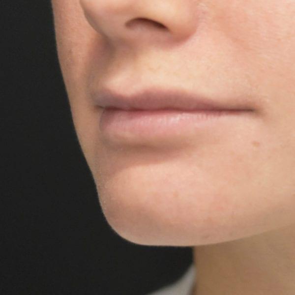 Läppar snett från sidan innan läppkirurgi-måsvingeplastik_35852