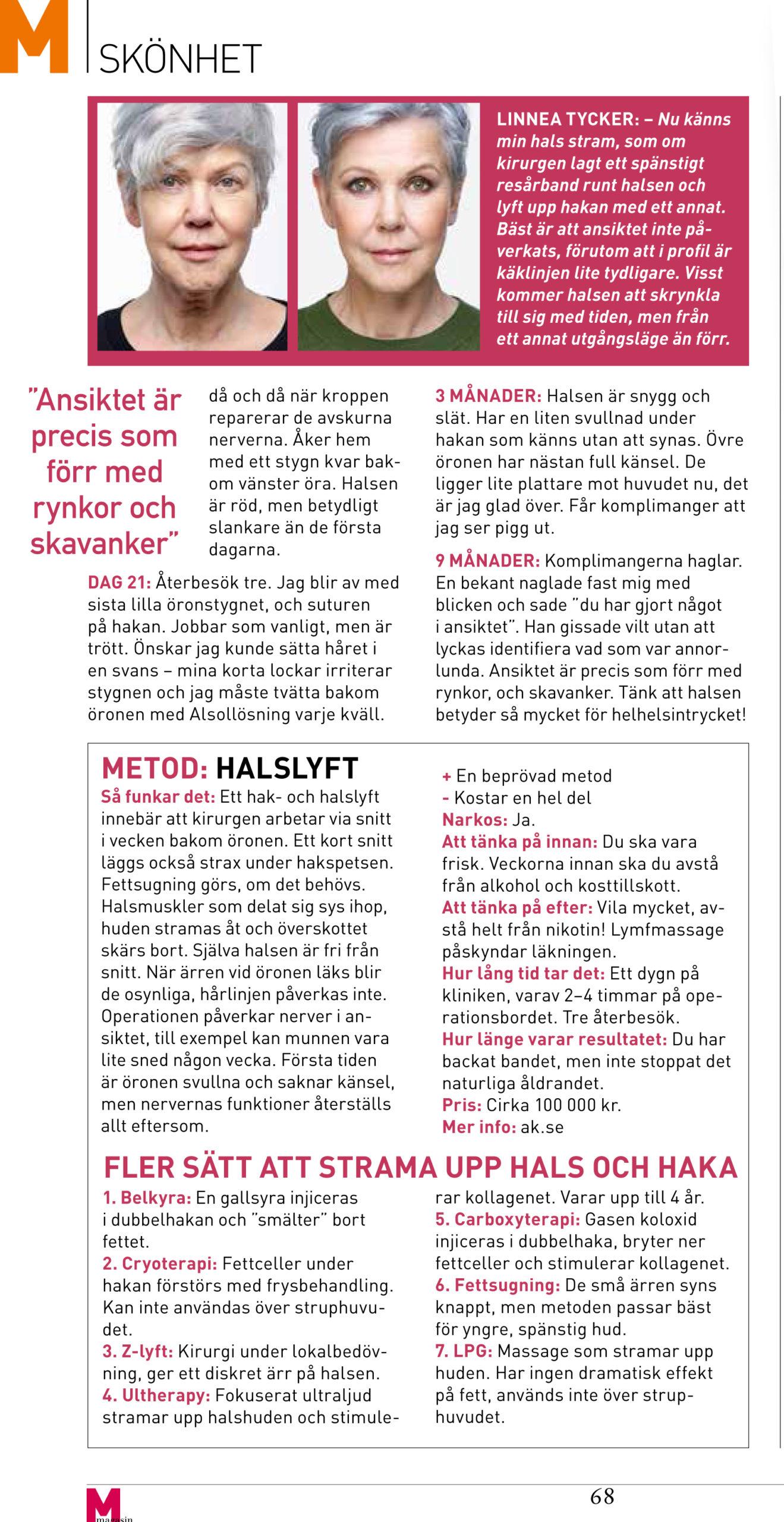 Del 2 Artikel M magasin Halslyft