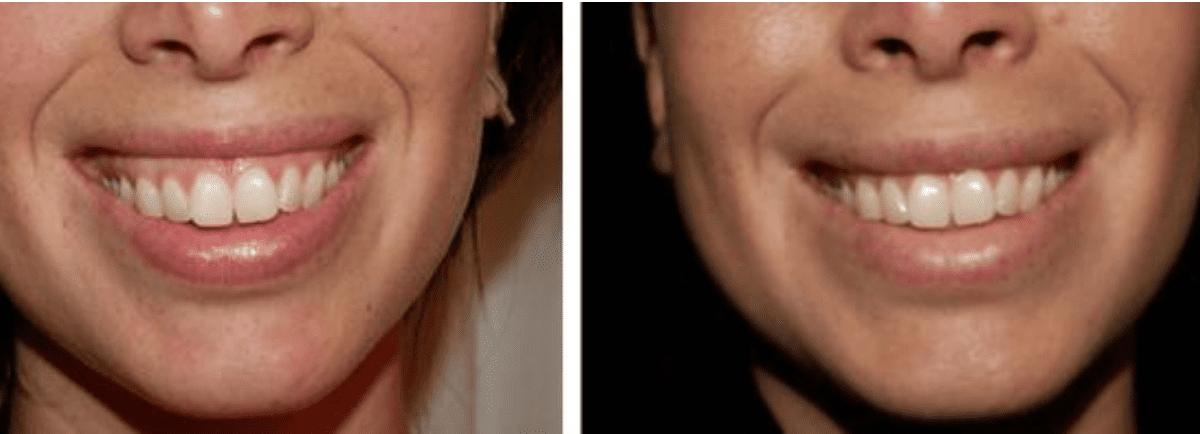 Behandling Gummy Smile. Neurotoxin för slappna av den överaktiva muskeln som gör att tandköttet syns när hon ler. På detta enkla sätt täcker nu läppen hennes tandkött.