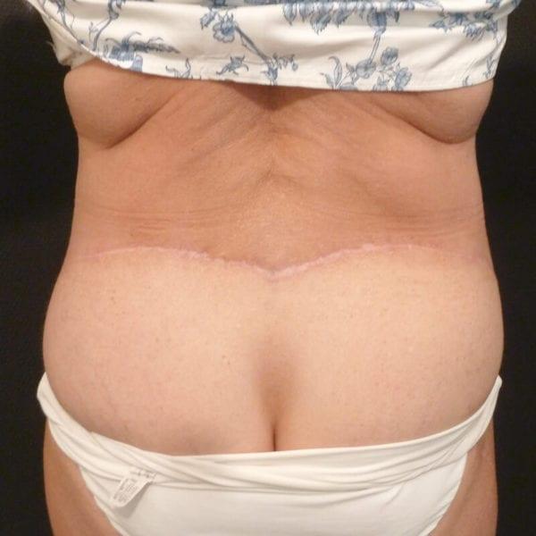 Patient bakifrån efter bukplastik på Akademikliniken