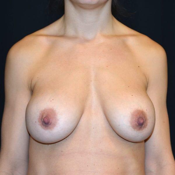 Byst framifrån innan implantatbyte+lyft 156503