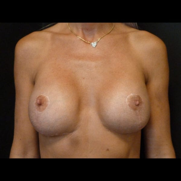 Byst framifrån efter bröstförminskning 158523