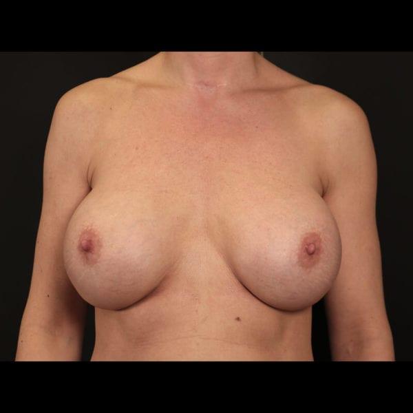 Byst framifrån innan bröstförminskning 158523