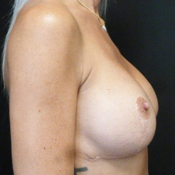Byst från sidan efter bröstförminskning 158523