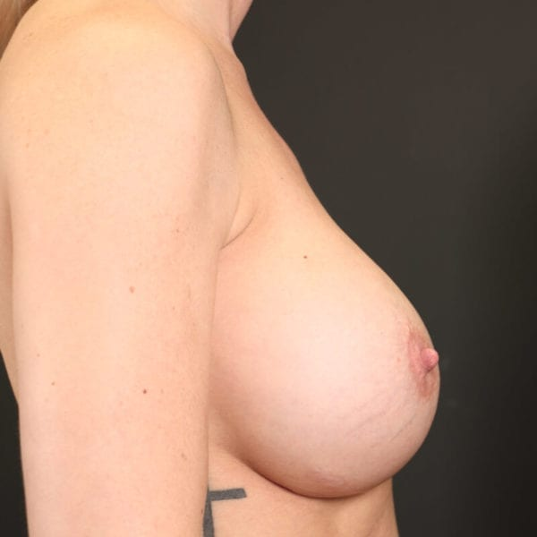 Byst från sidan innan bröstförminskning 158523