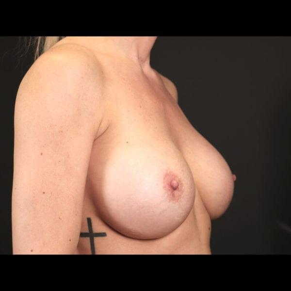 Byst snett från sidan efter bröstförminskning 158523