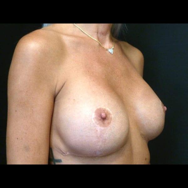 Byst snett från sidan innan bröstförminskning 158523