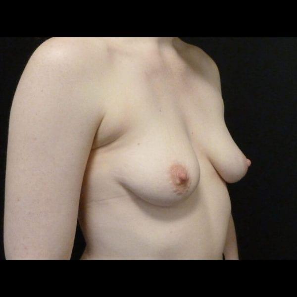 Byst snett framifrån innan bröstförstoring på Akademikliniken