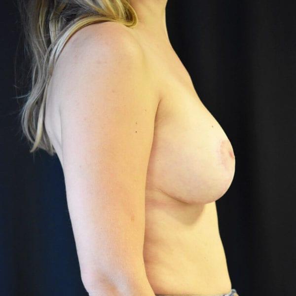 Byst från sidan efter bröstförstoring med lyft 173143