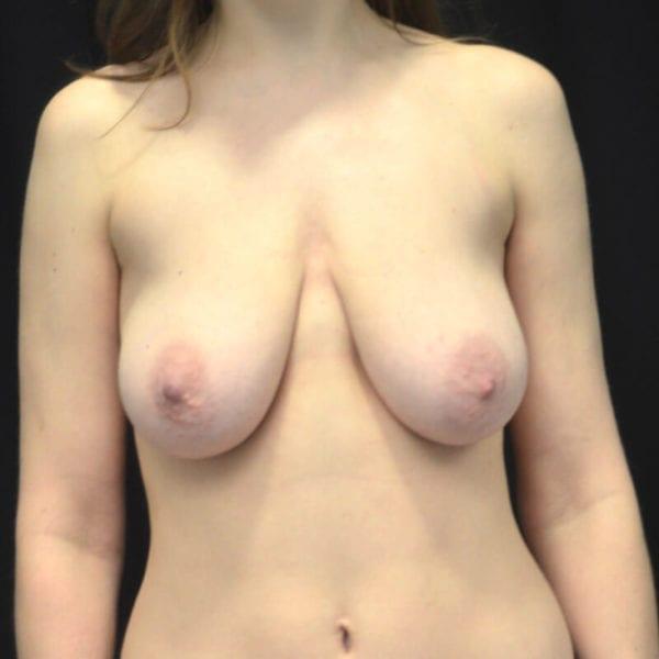 Byst innan bröstförstoring med lyft 173143
