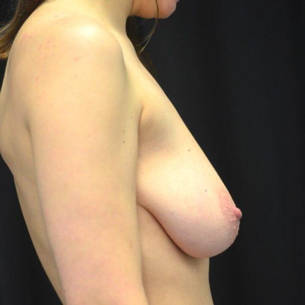 Byst från sidan innan bröstförstoring med lyft 173143