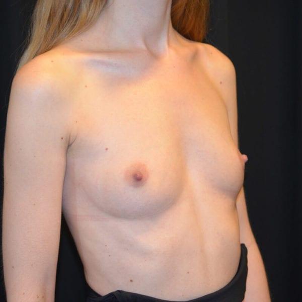 Byst snett framifrån innan bröstförstoring 178140