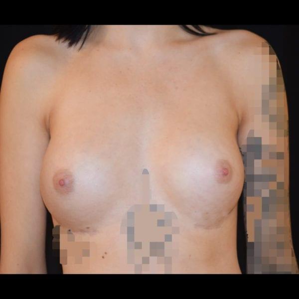 Efter bröstförstoring