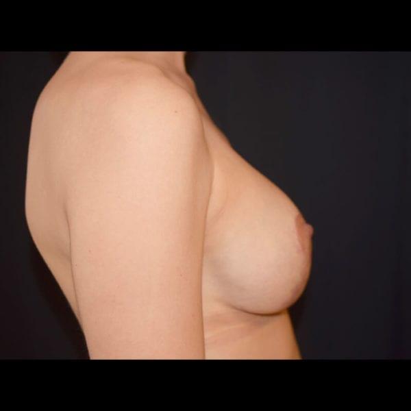 Byst från sidan efter bröstförstoring med lyft 179590