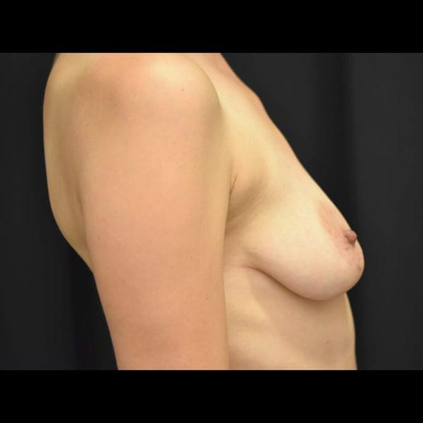 Byst från sidan innan bröstförstoring med lyft 179590