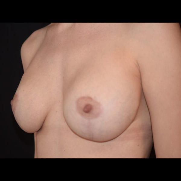 Byst snett från sidan efter bröstförstoring med lyft 179590