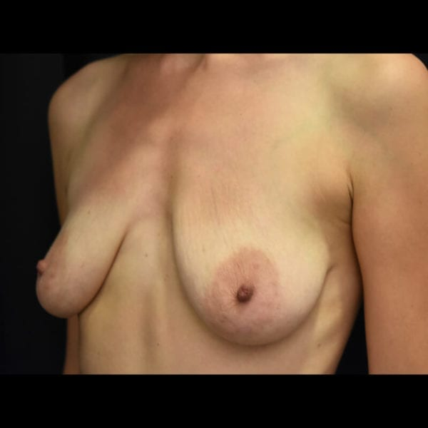 Byst framifrån innan bröstförstoring med lyft 179590