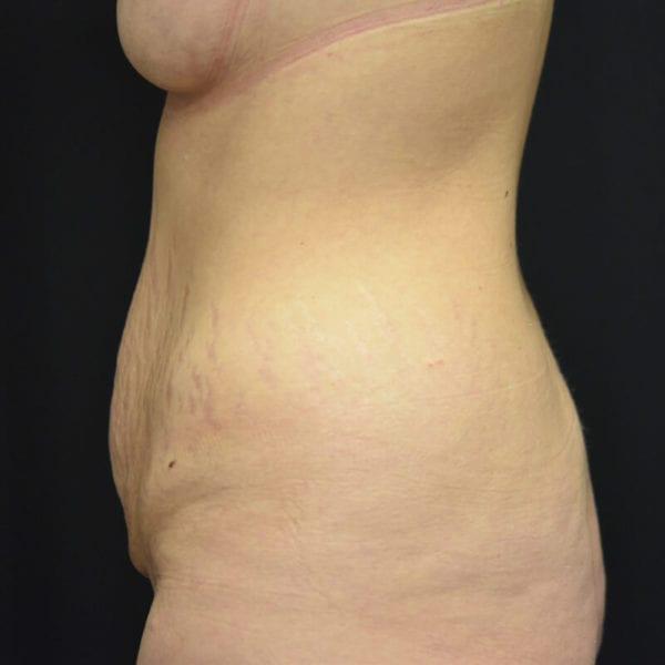 Kvinna innan Bodylift på AKademikliniken