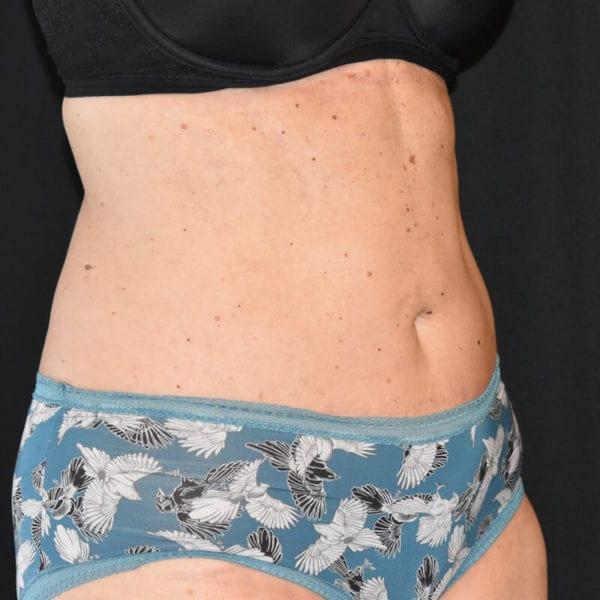 Kvinna efter bukplastik på Akademikliniken