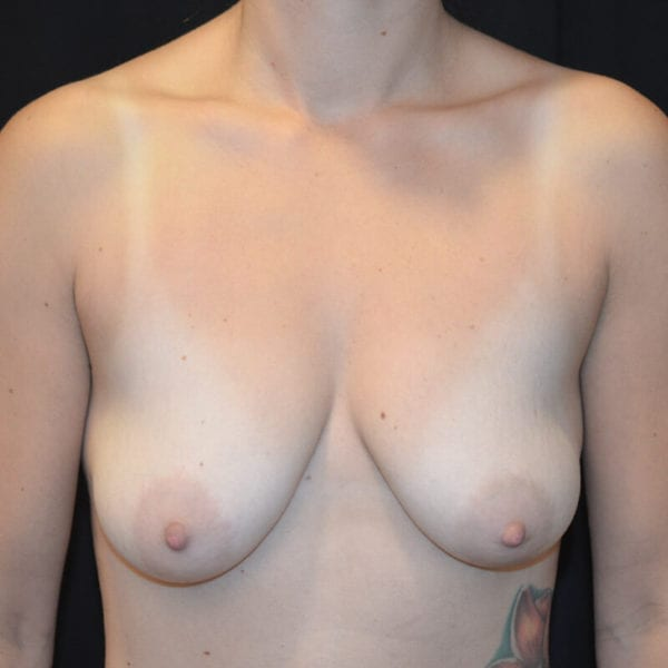 Byst framifrån före bröstförstoring med lyft 182150