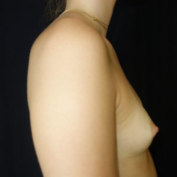 Kvinna från sidan innnan hybridbröstförstoring på Akademikliniken