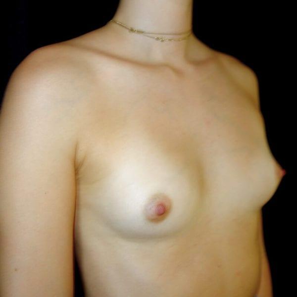 Kvinnan innan hybridbröstförstoring på AKademiklinikensnett framifrån