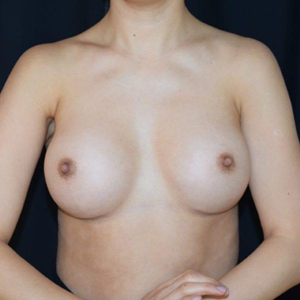 Byst framifrån efter bröstförstoring på Akademikliniken