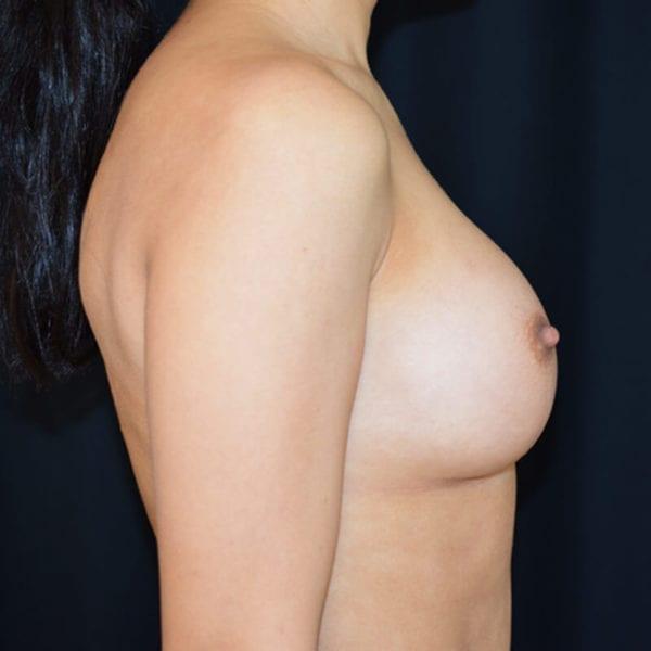 Byst från sidan efter bröstförstoring på Akademikliniken