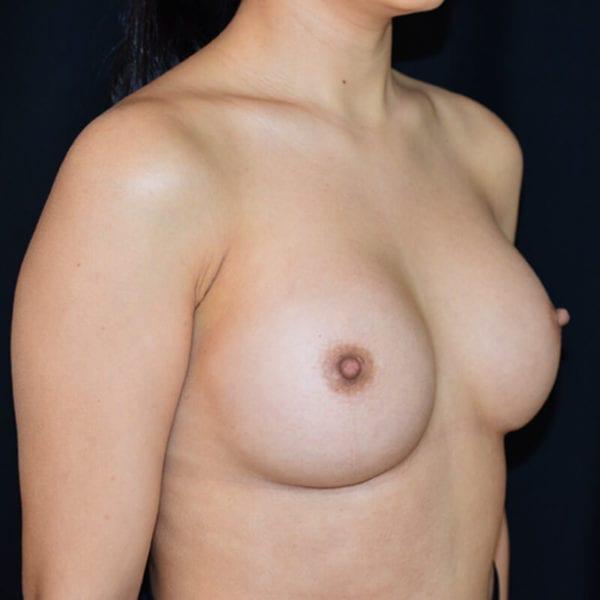 Byst snett från sidan efter bröstförstoring på Akademikliniken