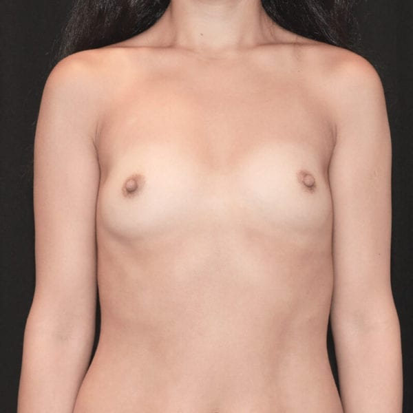 Byst framifrån innan bröstförstoring på Akademikliniken