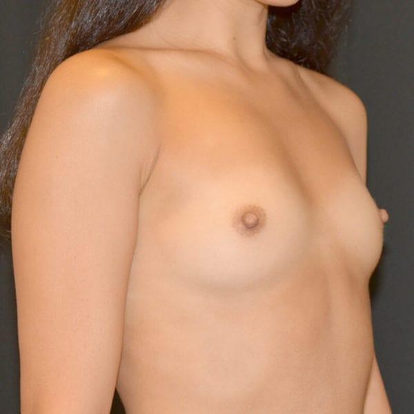 Byst snett från sidan innan bröstförstoring på Akademikliniken
