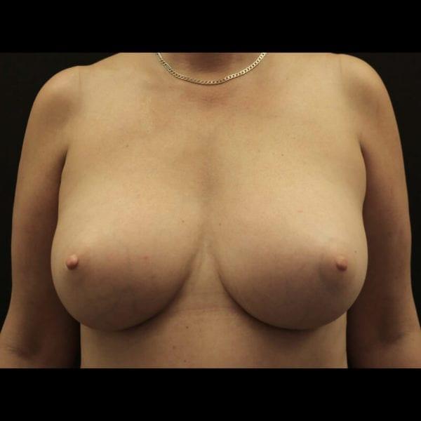 Byst efter bröstförstoring