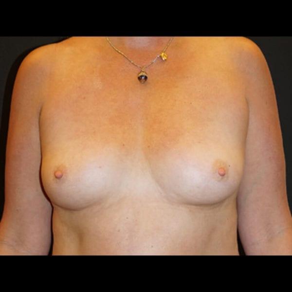 Byst innan bröstförstoring