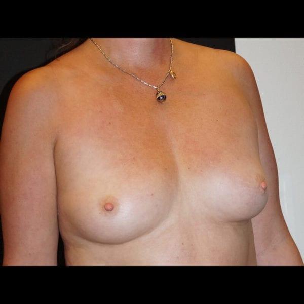 Byst innan bröstförstoring med implantat