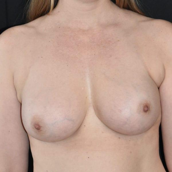 Byst efter bröstförstoring med eget fett