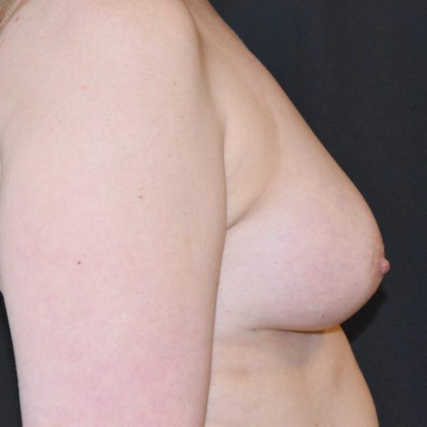 Byst från sidan efter bröstförstoring med eget fett på Akademikliniken