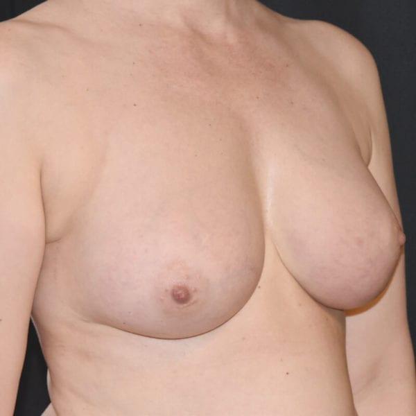 Byst snett från sidan efter bröstförstoring med eet fett på AKademikliniken
