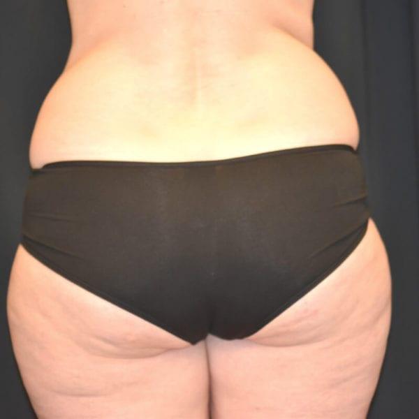 Lår bakifrån innan fettransplantation till bröst Akademikliniken