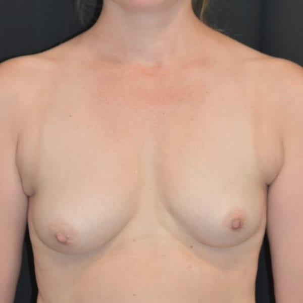 Byst innan bröstförstoring med eget fett