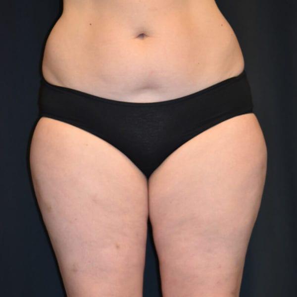 Lår framifrån innan fettransplantation till bröst Akademikliniken