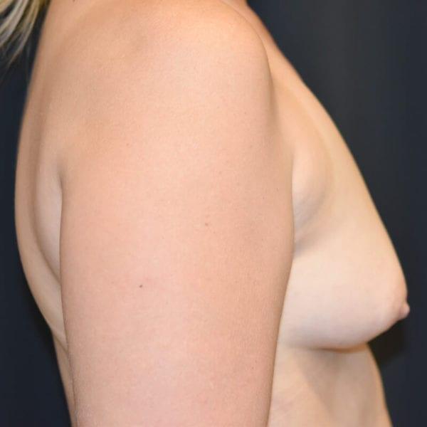 Byst från sidan innan bröstförstoring med eget fett