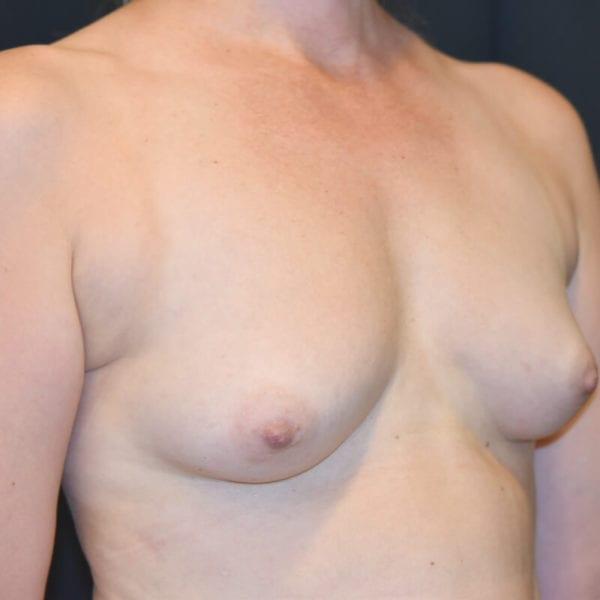 Byst snett från sidan innan bröstförstoring med eget fett på Akademikliniken