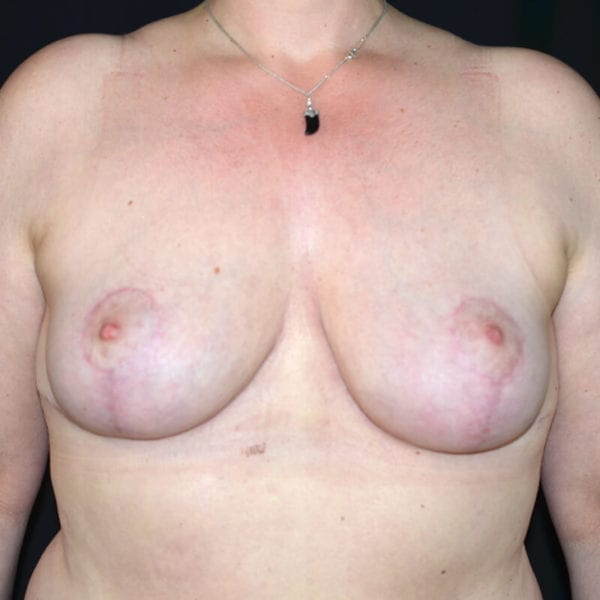 Kvinna efter bröstförminskning framifrån
