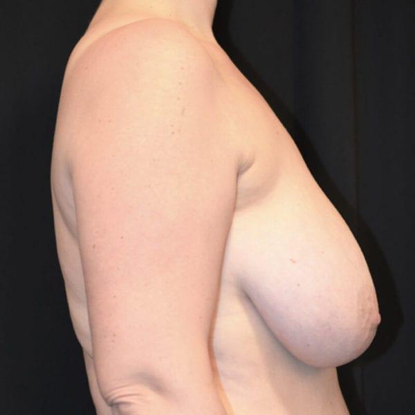Kvinna innan bröstförminskning från sidan
