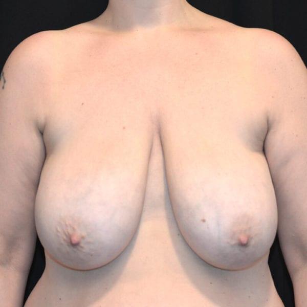 Kvinna innan bröstförminskning framifrån