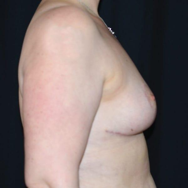 Bild efter bröstförminskning snett från sidan