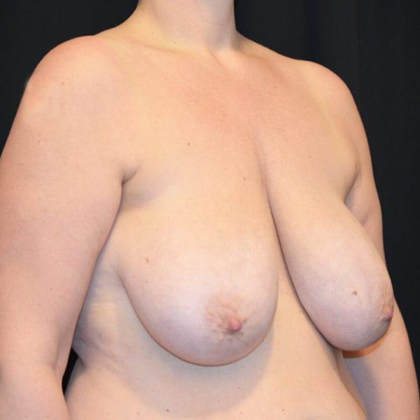 Kvinna innan bröstförminskning med lyft snett från sidan